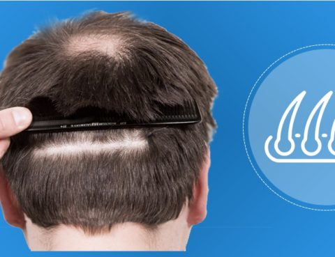 Hair transplantation in areas of scars and wounds