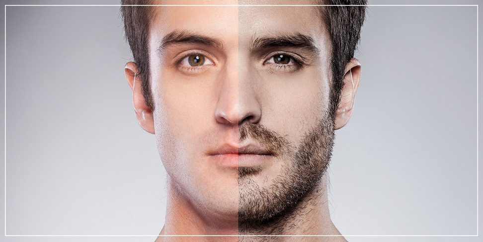 Hair transplantation in the beard and eyebrows area