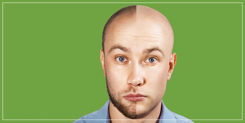 Two main techniques in hair transplantation