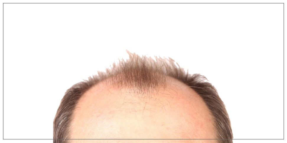 Is hair transplantation the right choice?!