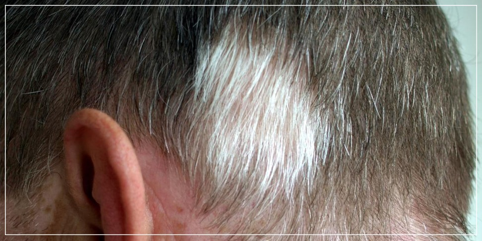 Perform hair transplantation for white hair