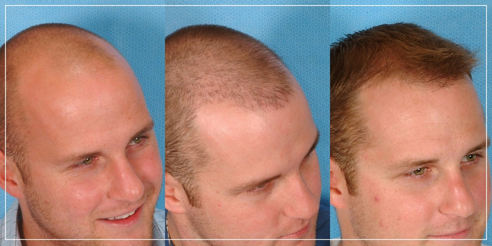 The benefits of hair transplantation and the reason for its superiority
