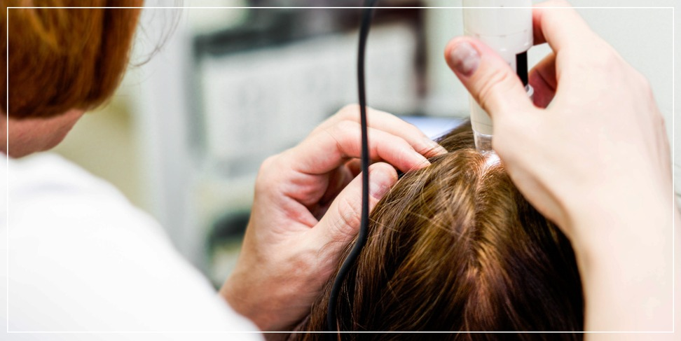 Treatment of hair loss and baldness using plasma injection