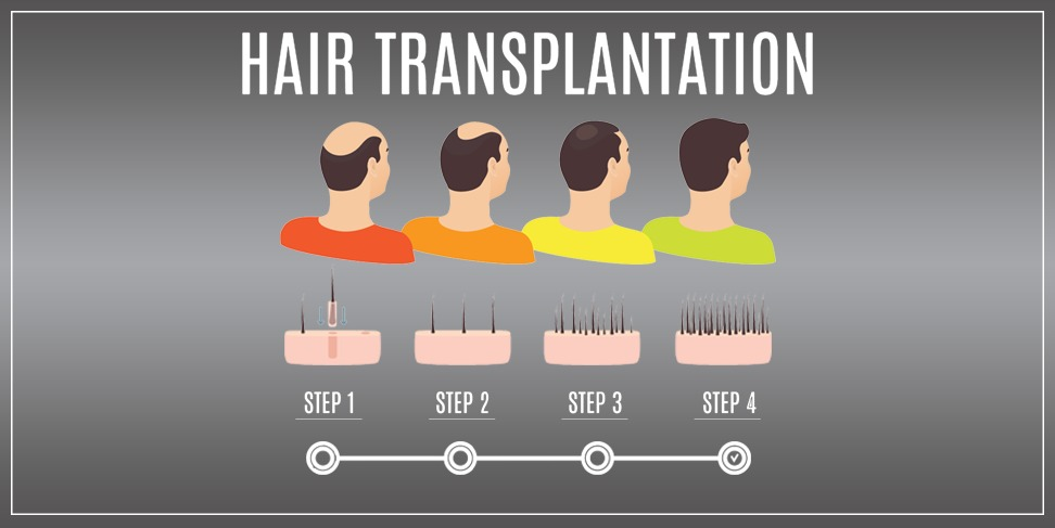 Hair transplantation using FUE (Follicular unit extraction) Technique