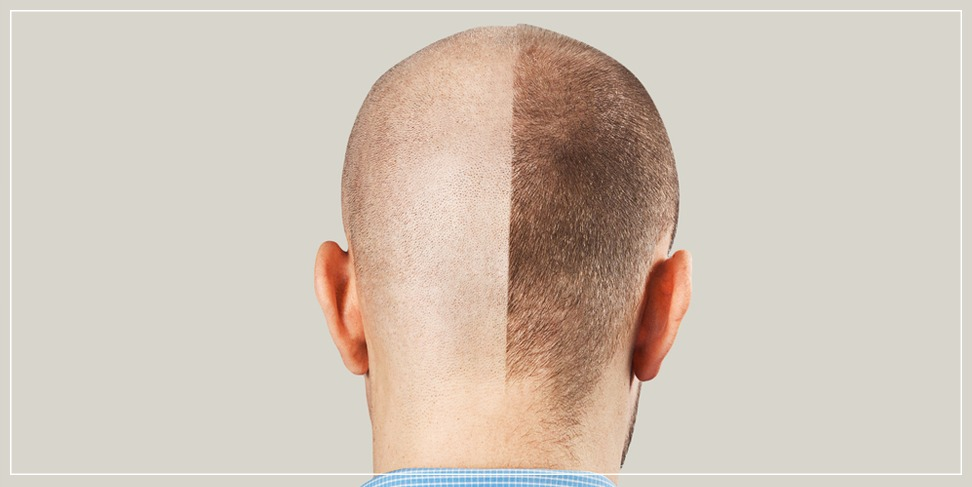 Stages of hair growth after the process of transplantation