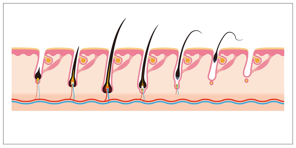 Hair transplantation using body hair