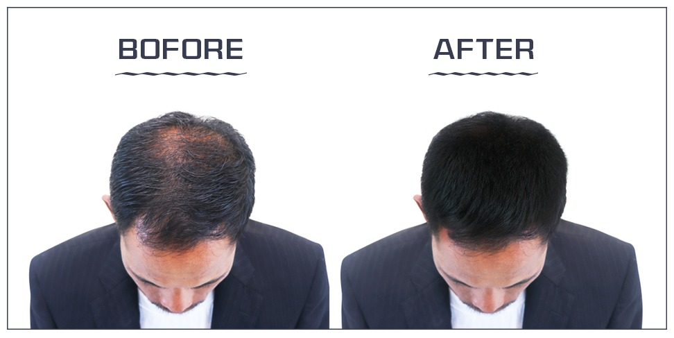 How to get successful hair transplantation