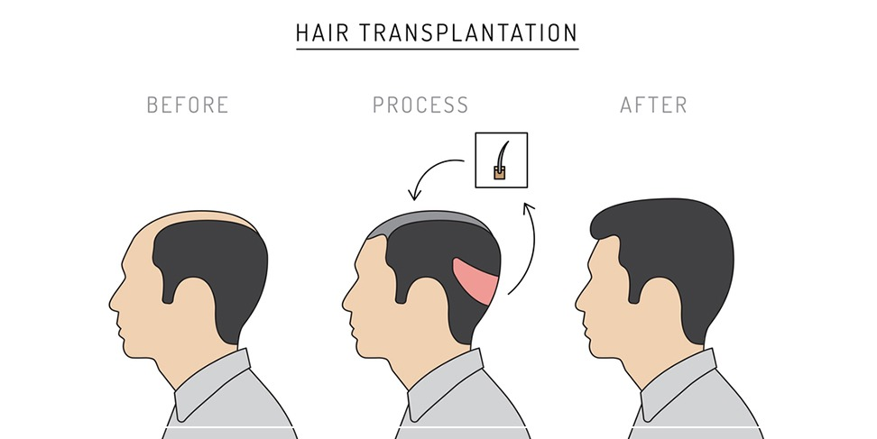 Comparison of famous minoxidil and hair transplantation
