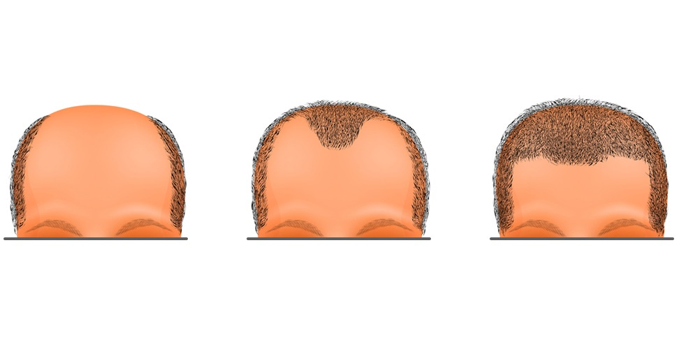 Side effects and risks of hair transplantation