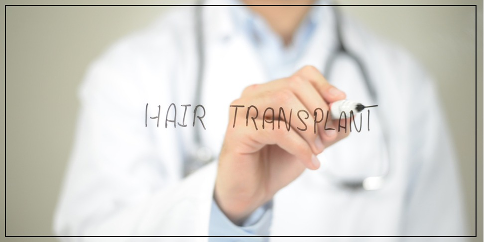 Hair transplantation in 2018 and the most prominent used techniques