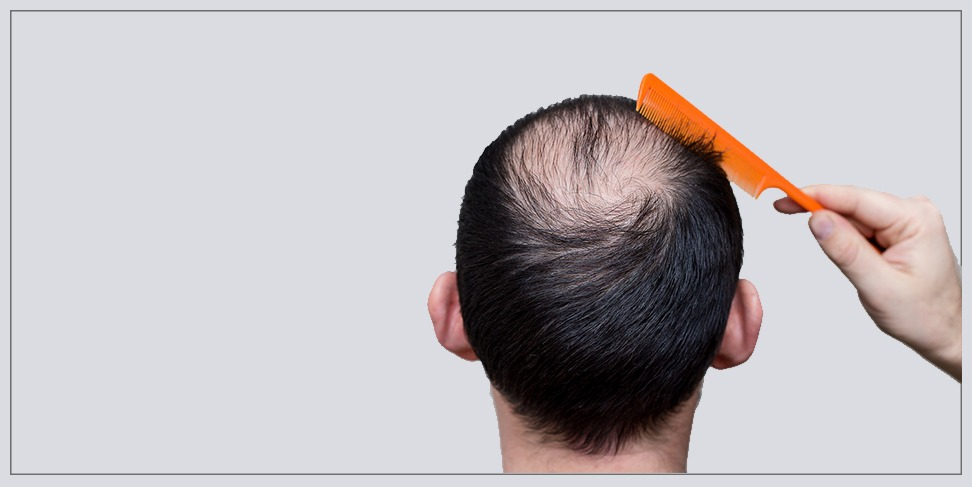 5 reasons to make turkey is your destination in hair transplantation