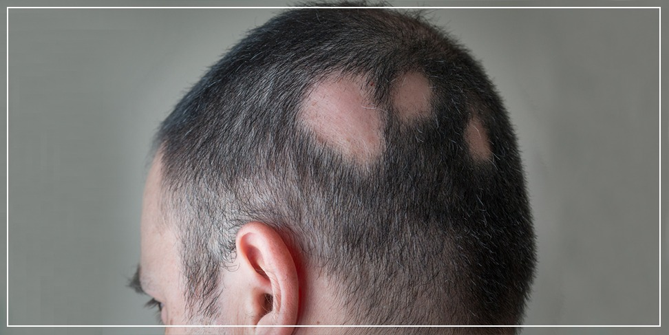 Male alopecia (diagnosis and treatment)