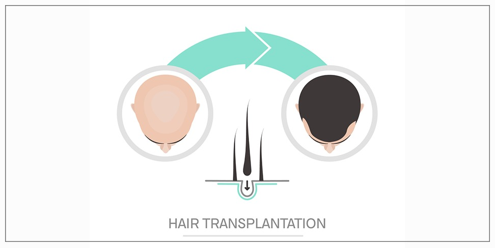 The view of science in hair transplantation