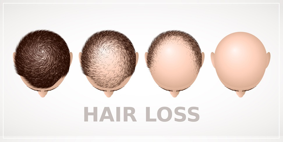 Hair transplantation achieves its objectives (scientific study)