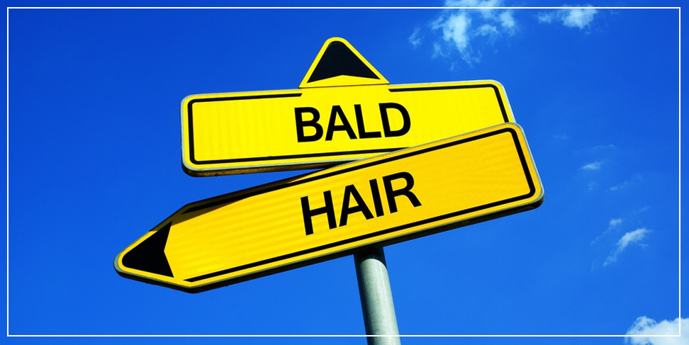 Hair transplantation for young people