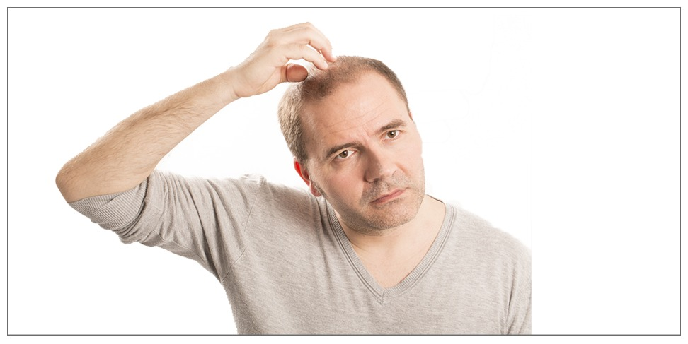 Best hair transplant techniques for men and women at Esthcare