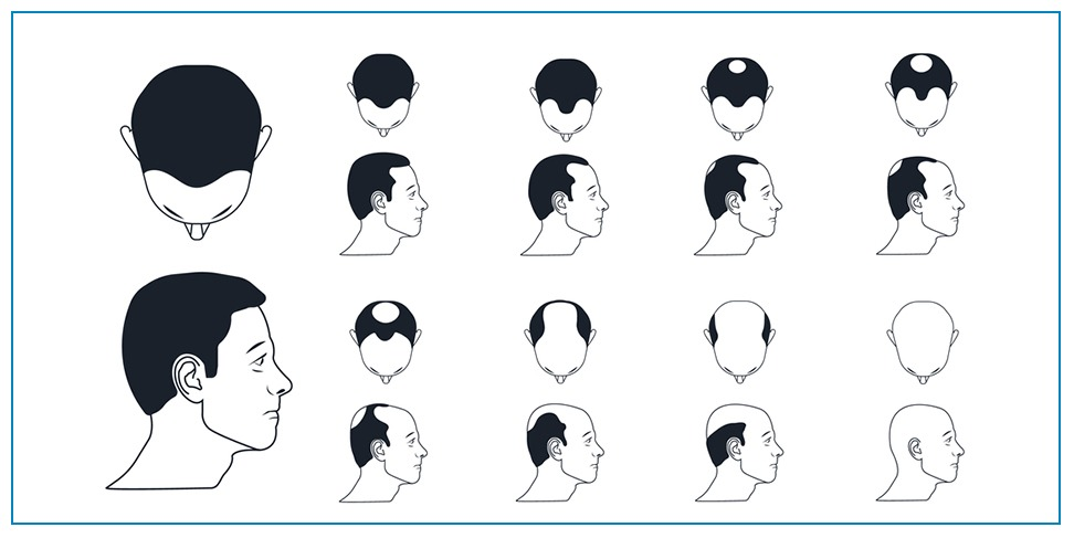 How the donor area affects the final result of hair transplantation