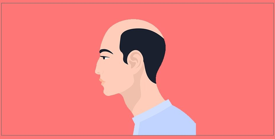 What can hair transplantation offer?
