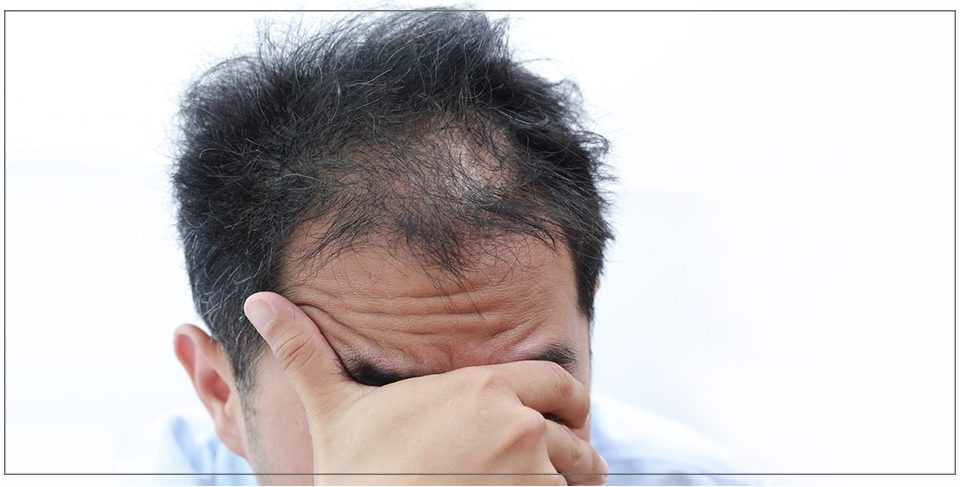 Hair transplantation according to doctors and scientists