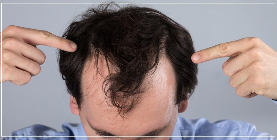 3 Possible Causes of Hair Transplant Failure & How to Avoid them