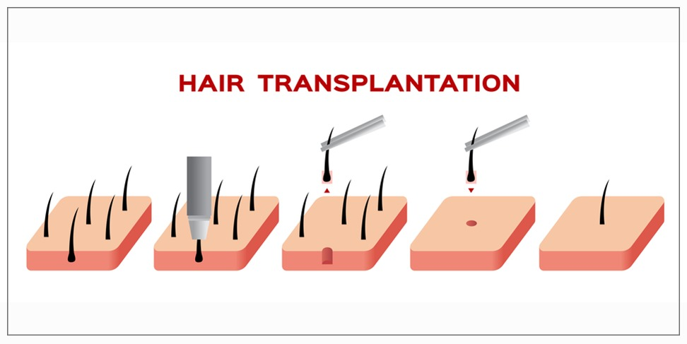 Hair transplant, new look and upcoming changes