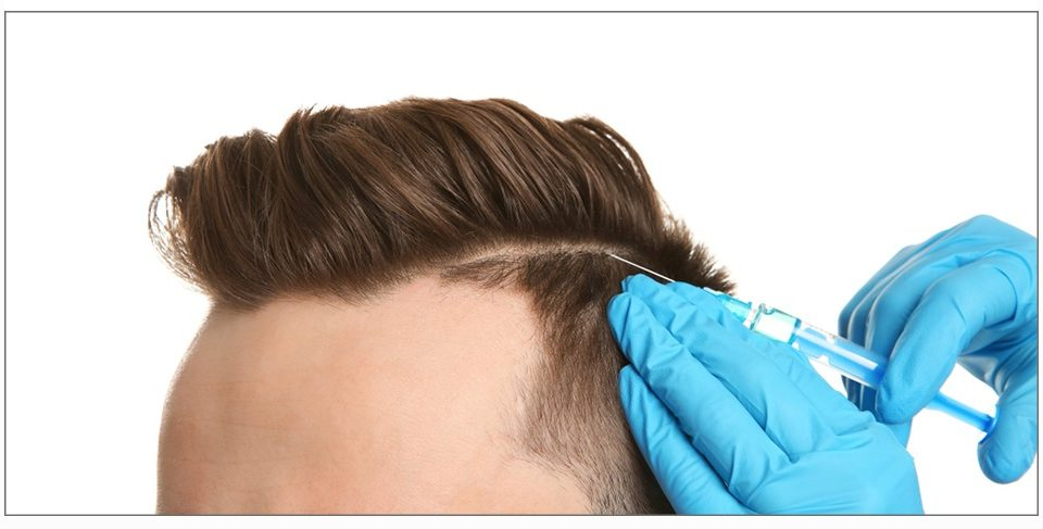 How can I get a Successful Hair Transplantation Can I get rid of baldness and show more elegance than before