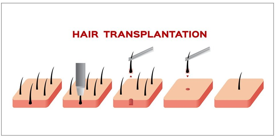 The most important medicines that will be prescribed by the doctor after hair transplantation